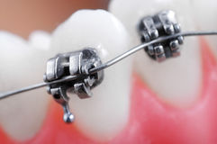 Dental braces Stock Photos