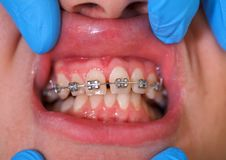 Dental braces Stock Photo