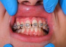 Dental braces. Close up of a dental braces at a dental clinic Stock Photo