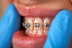 Dental braces. Close up of a dental braces at a dental clinic Stock Image