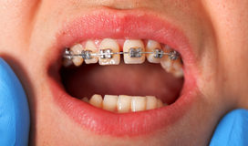 Dental braces. Close up of a dental braces at a dental clinic Royalty Free Stock Photo