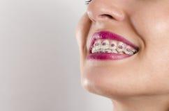 Dental braces Stock Images