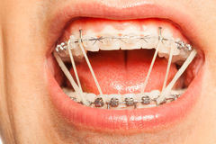 Dental braces with orthodontic latex rings on Stock Image