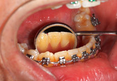 Dental braces. Picture of a dental brace examination at a clinic Stock Photo