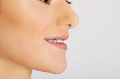 The dental braces. Stock Photo