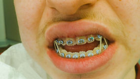 Dental braces with rubber bands Stock Photo