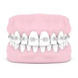 Dental braces Royalty Free Stock Image