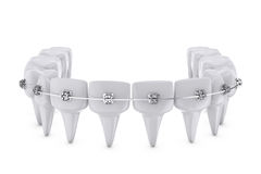 Dental brackets Royalty Free Stock Images