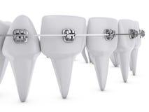 Dental brackets Royalty Free Stock Images
