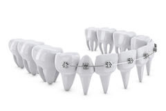 Dental brackets Stock Image