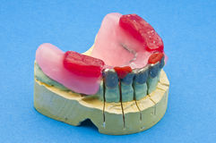 Dental bridge Stock Image