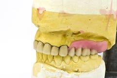 Dental bridge Royalty Free Stock Images