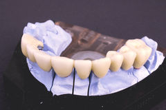 Dental bridge Royalty Free Stock Image
