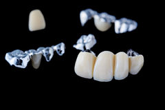 Dental Bridge Stock Images