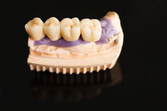 Dental bridge made of porcelain on casting Stock Images