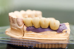 Dental bridge made of porcelain on casting Royalty Free Stock Images