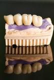 Dental bridge made of porcelain on casting Stock Photos