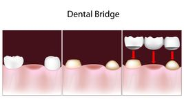 Dental bridge procedure Stock Images