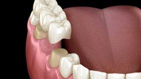 Dental bridge of 3 teeth over molar and premolar. Medically accurate 3D illustration