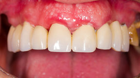 Dental Bridges Royalty Free Stock Photography