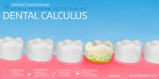 Dental calculus horisontal medical banner template. Stock Photography