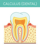 Dental calculus  Stock Images