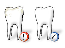 Dental care. Healthy and ill tooth Royalty Free Stock Photo