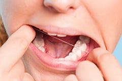 Girl showing teeth Stock Image