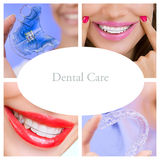 Dental Care Collage (dental services) royalty free stock image