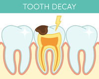 Dental caries  Royalty Free Stock Photography