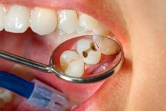 Dental caries. Filling with dental composite photopolymer material using rabbders. Concept of dental treatment in dental clinic. Dental caries. Filling with stock photography