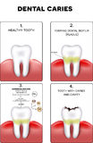 Dental caries formation Stock Images