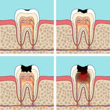 Dental caries stages. Stock Images