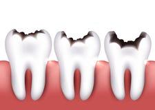 Dental caries Royalty Free Stock Photos