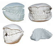 Dental cast Royalty Free Stock Image