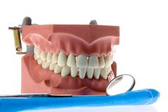 Dental casting Royalty Free Stock Images