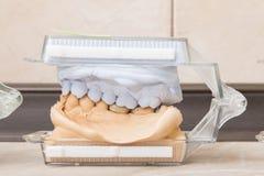 Dental casting gypsum models plaster Stock Photography