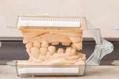 Dental casting gypsum models plaster Stock Image