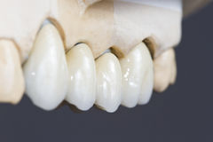Dental ceramic bridge Royalty Free Stock Image