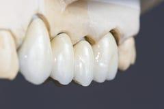 Dental ceramic bridge royalty free stock image