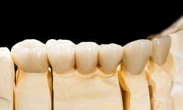 Dental ceramic bridge Royalty Free Stock Images