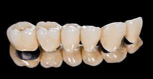 Dental ceramic bridge Royalty Free Stock Photos