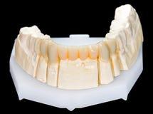 Dental ceramic bridge Royalty Free Stock Photos
