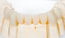 Dental ceramic bridge. On isolated white background stock photography