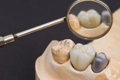 dental ceramic crown Royalty Free Stock Images