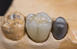 dental ceramic crown Stock Images