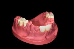 Dental ceramic crowns Royalty Free Stock Photo