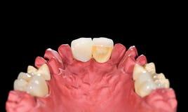 Dental ceramic crowns Stock Image