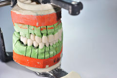 Dental ceramic prosthesis with porcelain teeth Royalty Free Stock Photography