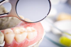 Dental check and dentistry mirror Stock Photography